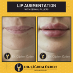 Lip Filler and Jawline Filler in Istanbul – Turkey